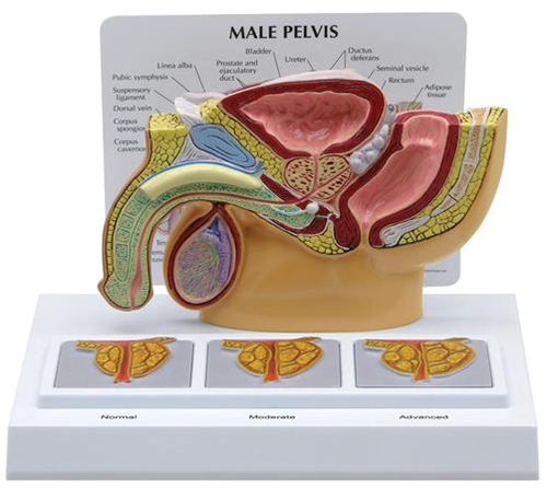 Picture of Male Pelvis with 3D Prostate Frame