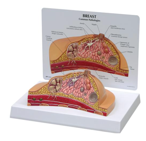 Picture of Breast Cross-Section Model